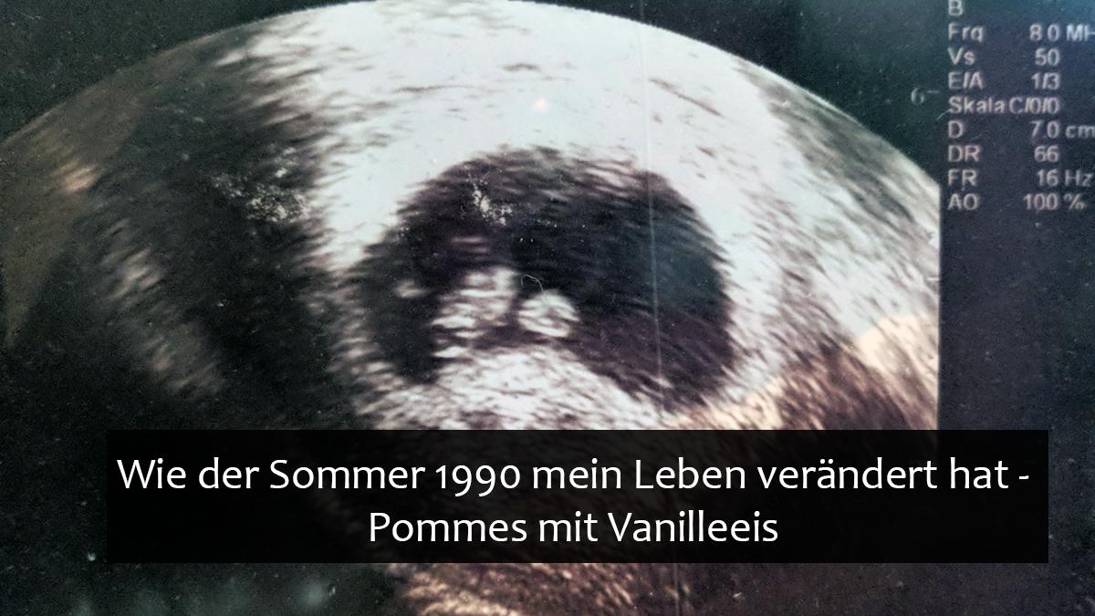 Wie der Sommer 1990 alles veränderte: Baby im Anmarsch